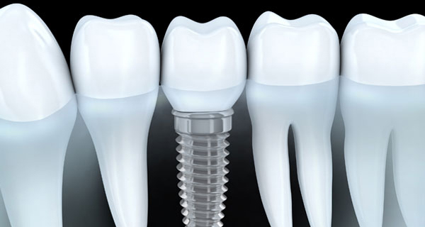 dental-bridge-or-implant-for-missing-teeth