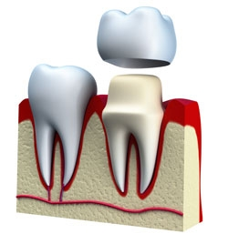 imageuploads/covered/2020/03/16/tooth-replacement.jpg