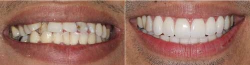 Dental Veneers and cost in chennai