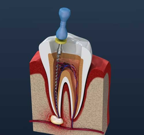 failed root canal treatment