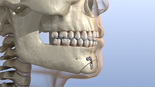 jaw surgery in chennai