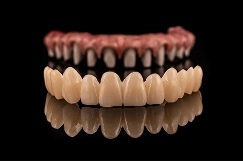 full mouth reconstruction dentist in chennai