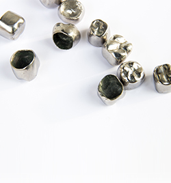 dental crowns in chennai