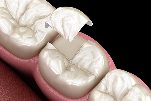 dental inlays and onlays in chennai