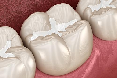 preventive dentistry in chennai