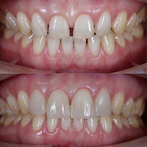 cost of dental veneer in chennai