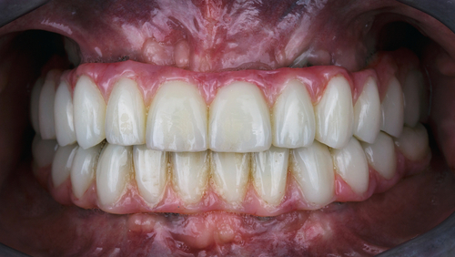 total mouth implants in chennai
