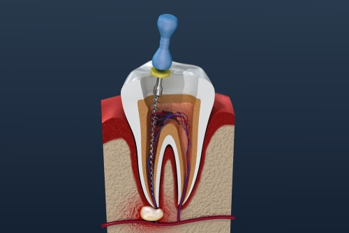 cost of root canal treatment in chennai