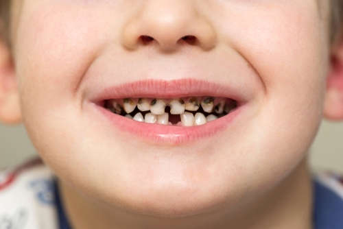 early childhood caries in chennai