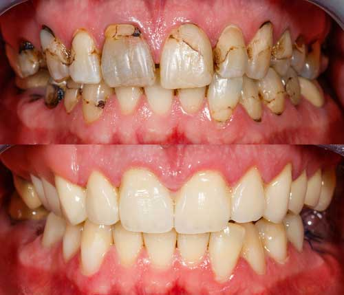 full mouth rehabilitation cost in chennai