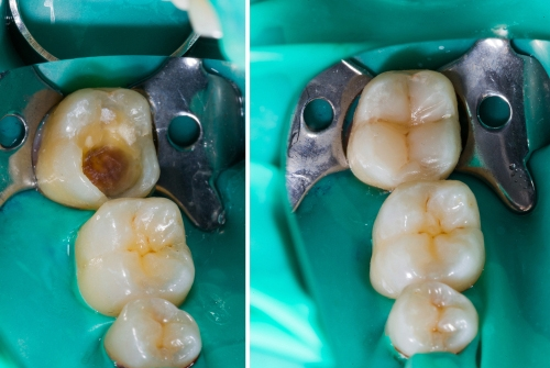 tooth colored restoration in chennai