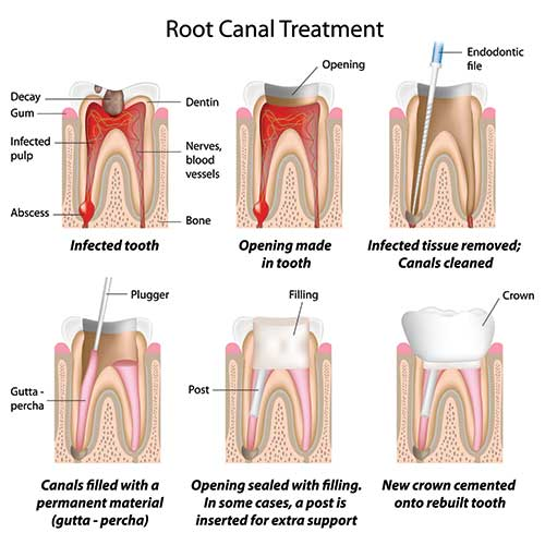 root canal treatment in chennai